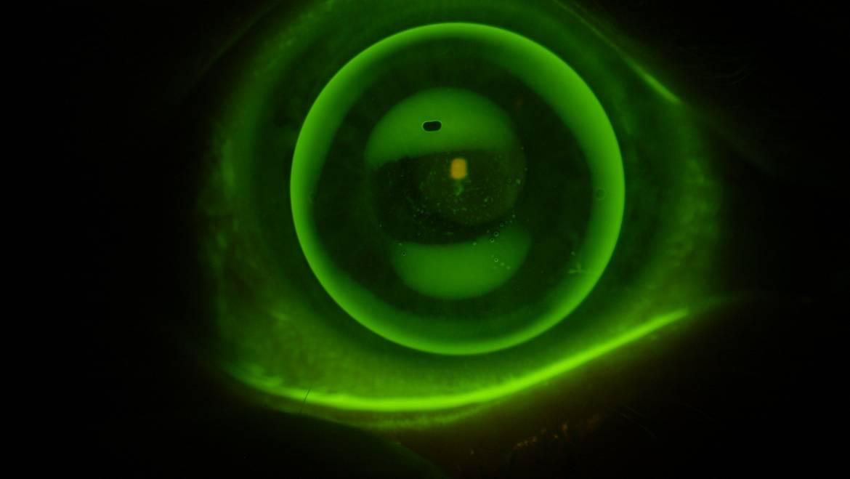 Spezielle Kontaktlinsen