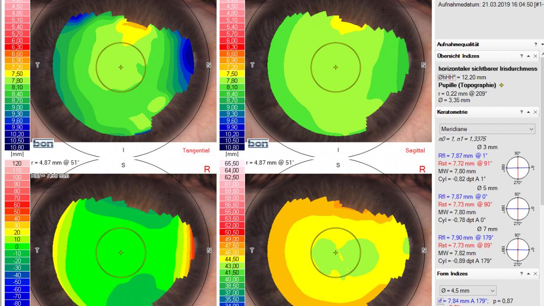 Formstabile Kontaktlinsen